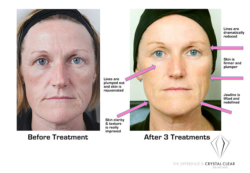 Lady Before and After use of Crystal Clear Comcit